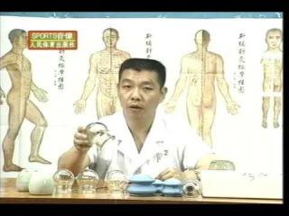 Вакуум--терапия. Баночный массаж