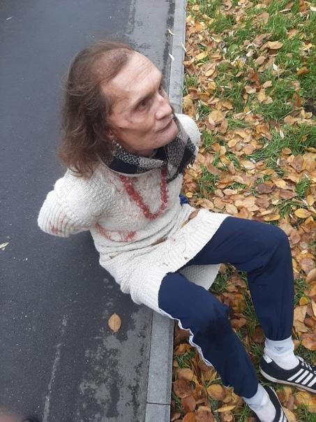 На севере Москвы мужчина в женском платье напал с ...